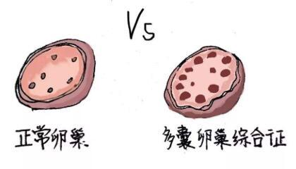 在上海治疗多囊卵巢综合症最好的医院推荐
