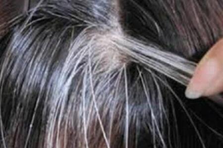 头顶长出白发的原因及解决方法,用对方法白发立马变乌发