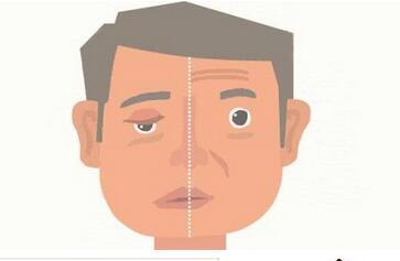 嘴角往一边歪的病症原理,掌握治疗的方法