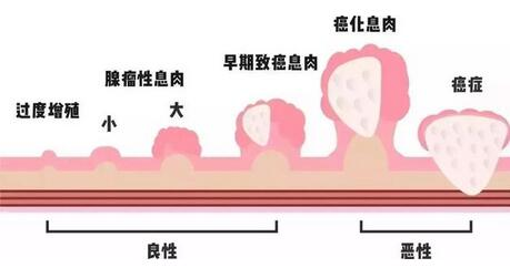 上海治疗喉咙息肉比较好的医院推荐