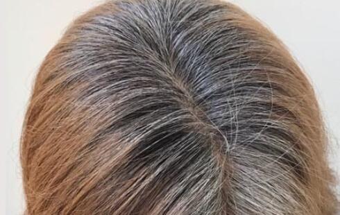 20多岁白发越来越多的原因,用对方法可预防减少白发