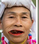 上海看口腔癌比较好的医院推荐,认准三甲更有保障