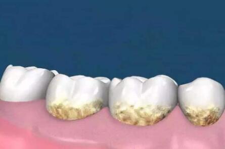 牙菌斑的形成原因及预防措施,清除牙菌斑的小妙招
