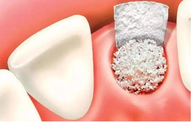 引导骨再生术可恢复牙槽骨的理想外形,老年人牙槽骨严重缺失还有方法补救