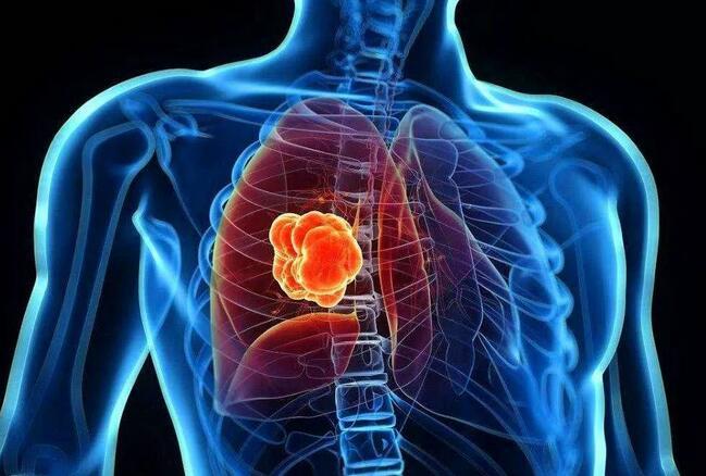"""中医治疗肺癌的明显优势,不再谈""""癌""""色变"""